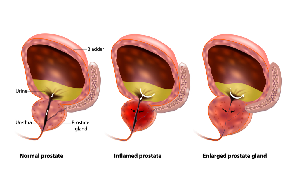 illustration comparing normal, inflamed, and enlarged prostate